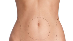 Body Lift Cosmetic Surgery in Gurgaon